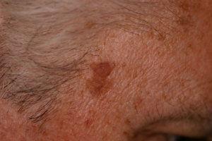 seborrehic-keratosis-pre-laser-treatment