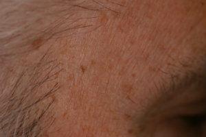 seborrehic-post-laser-treatment.jpg.jpeg