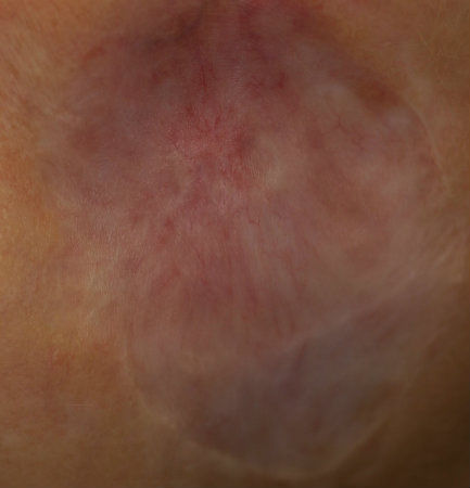 face-lesion-post-treatment.jpg.jpeg