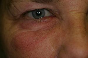 eye-infection-pre-laser-treatment.jpg.jp