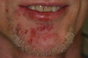 shingles-chin-post-laser-treatment.jpg.j
