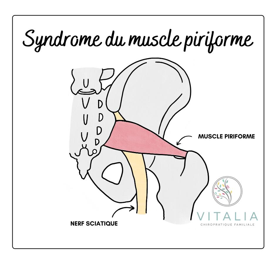 Syndrome du piriforme