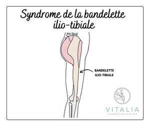 Syndrome de la bandelette ilio-tibiale (BIT) - Douleur au genou