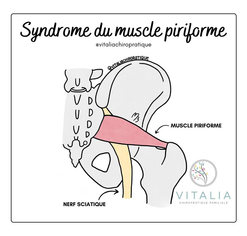 Syndrome du piriforme ; muscle piriforme ; piriformis