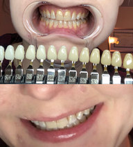 Teeth Brightening - 10 shades whiter!