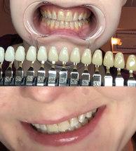 Teeth Brightening - 10 shades whiter!