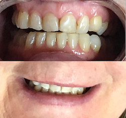 Teeth Brightening - 8 shades whiter!