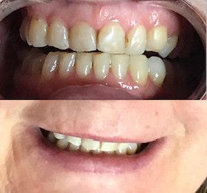 Teeth Brightening - 8 shades whiter!