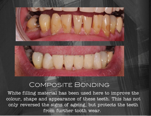 Tooth Whitening and Composite Veneers