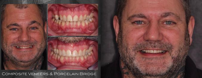 Composite Veneers to treat Tooth Wear