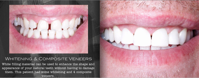 Whitening & Space Closure with Composite Veneers