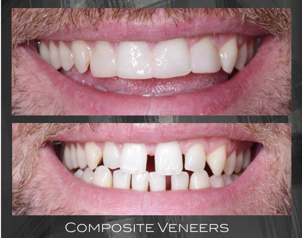 Space closure with composite veneers