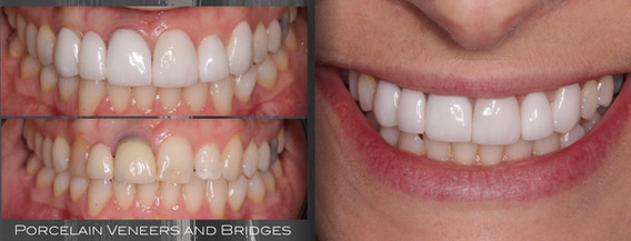 E-max Porcelain Veneers & Bridges