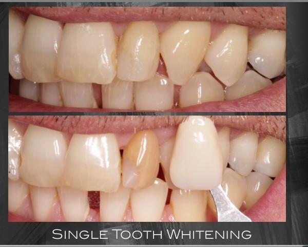 Singe tooth whitening
