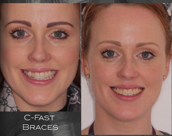 C-Fast braces to improve alignment of upper teeth