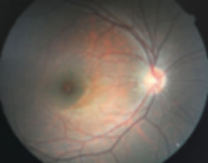 RetinalPhotography.JPG