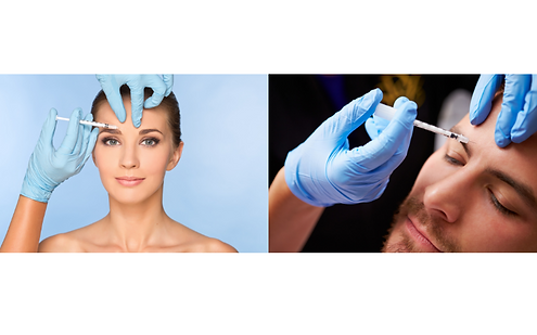 botox wrinkle reduction tocco di bellezza.png