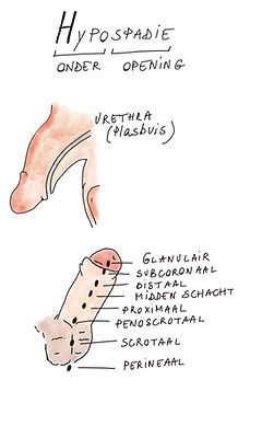 Hypospadie.jpg
