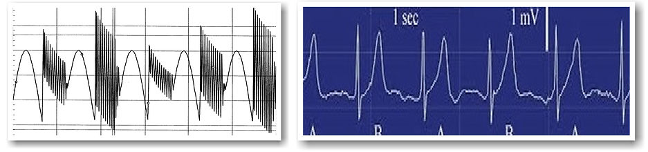Stanley Meyer`s Resonant Waveform vs. EC