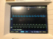 Stanely A Meyer Analog signal with small
