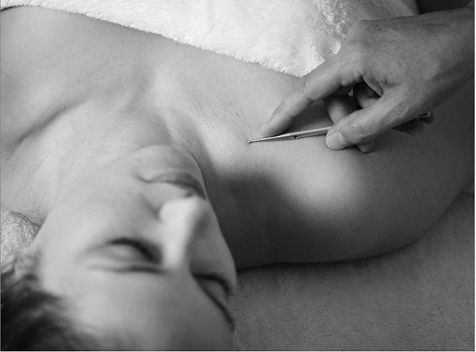 Termin buchen Akupunktur.jpg