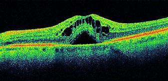 oct oedema.jpg