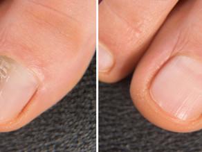 Treating Nail Fungus.