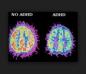 大麻治療對降低多動症患者的藥物攝取量有關
