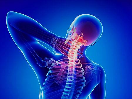 008-Osteoartritis en la columna vertebra