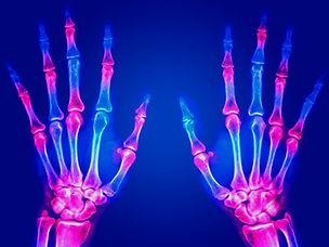 006-Artritis Reumatoide.jpg