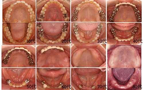 歯の喪失.jpg