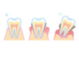 歯周病イラスト.jpg