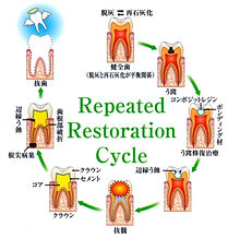 Repeated Restration Cycle.jpg