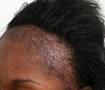 traction alopecia.2.jpg