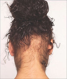 traction alopecia.4.jpg