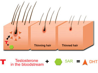 DHT: How it Causes Hair Loss                               How Hair Rehab can Stop it!