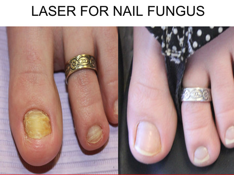 laser Nail Fungus in San Antonio