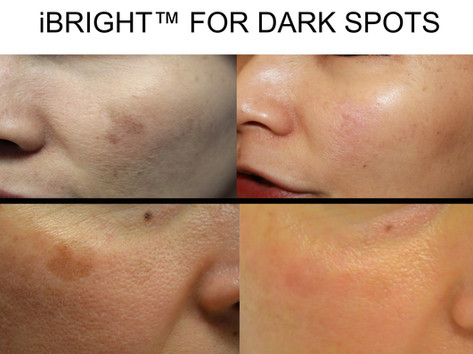 iBright™ Laser for Dark Spots in an Antonio Boerne