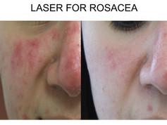 Laser Treatment Rosacea in San Antonio Boerne
