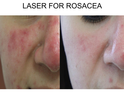 Laser Treatment Rosacea in San Antonio Boerne