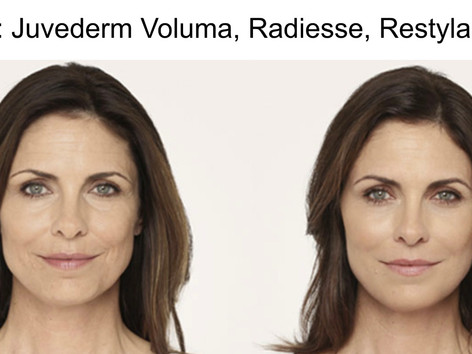 fillers voluma in San Antonio Boerne
