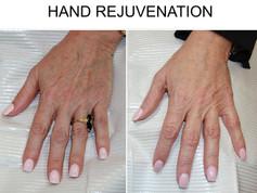 Hand Rejuvenation in San Antonio Boerne