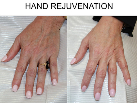 Hand Rejuvenation in San Antonio Boerne