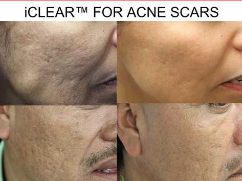 iClear for Acne Scars in San Antonio Boerne