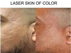 Laser Skin of Color in San Antonio, Boerne