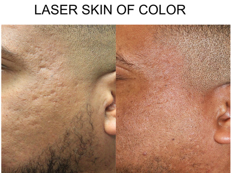 Laser Skin of Color in San Antonio, Boerne