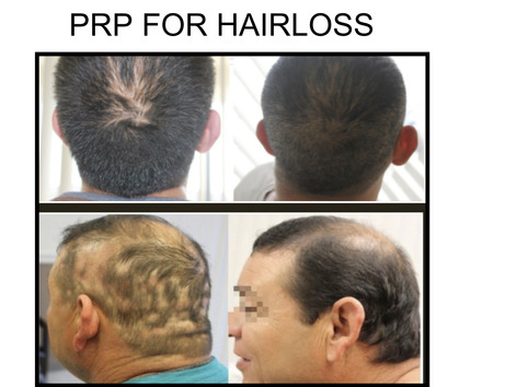 PRP for Hair Loss in San Antonio Boerne