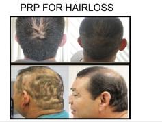 PRP for Hair Loss in San Antonio Boerne
