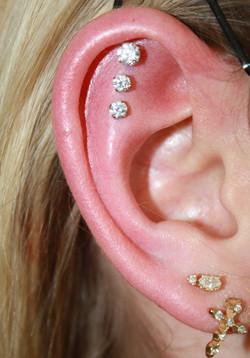 triple+flat+ear+cartilage.JPG
