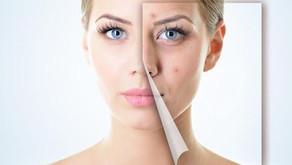 Microdermoabrasión con punta de diamante: Para que sirve y que beneficios trae a la piel.